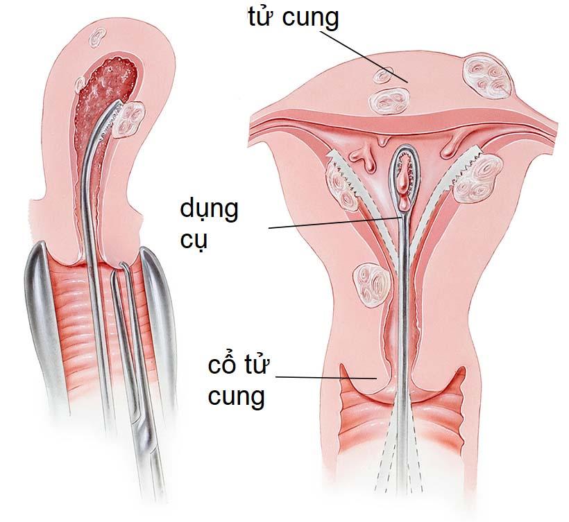 Hút nạo buồng tử cung