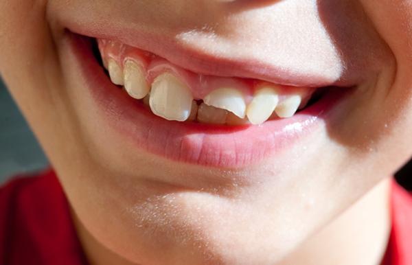 Hàn răng cửa bị mẻ có tốt không, độ bền bao lâu?