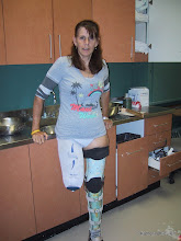 Photo: The day my 1st prosthetic socket was made.  In the lab.