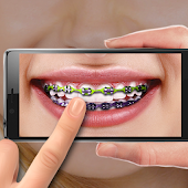 Braces on Photo. Editor