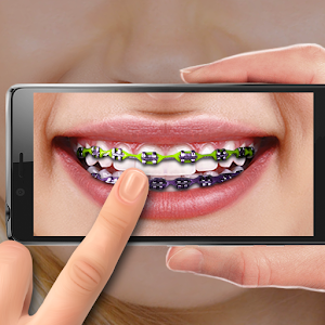 Braces on Photo. Editor for PC and MAC
