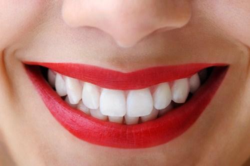 Quy trình lấy cao răng bằng máy siêu âm qua 5 bước an toàn 1