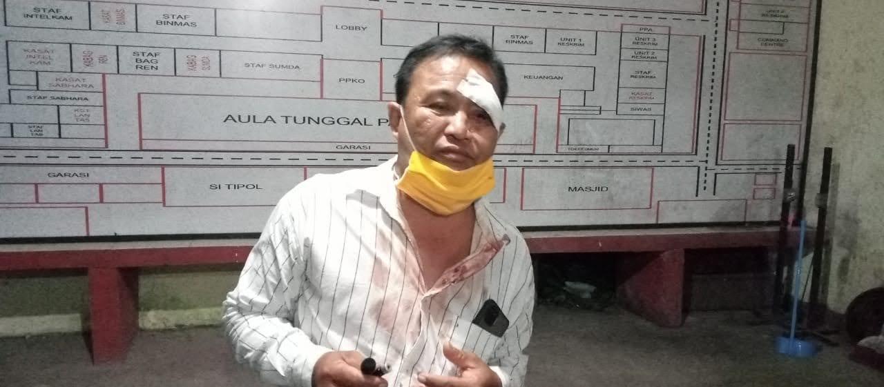 Oknum Anggota DPRD Kabupaten Bengkayang MelakukanPenganiayaan Terhadap Warga Singkawang Hingga Babak Belur