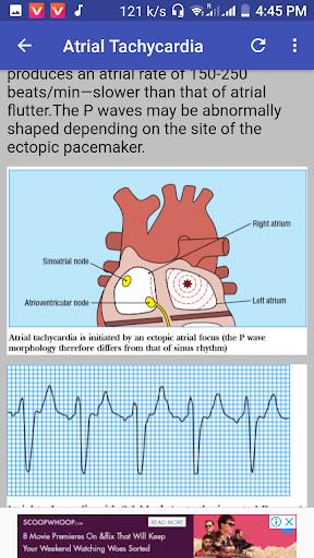 clinical ecg guide. screenshot 1