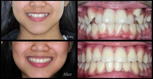Khi nào nên sử dụng niềng răng mắc cài sứ 1