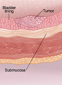 Cross section of bladder wall showing cancer at superficial stage.