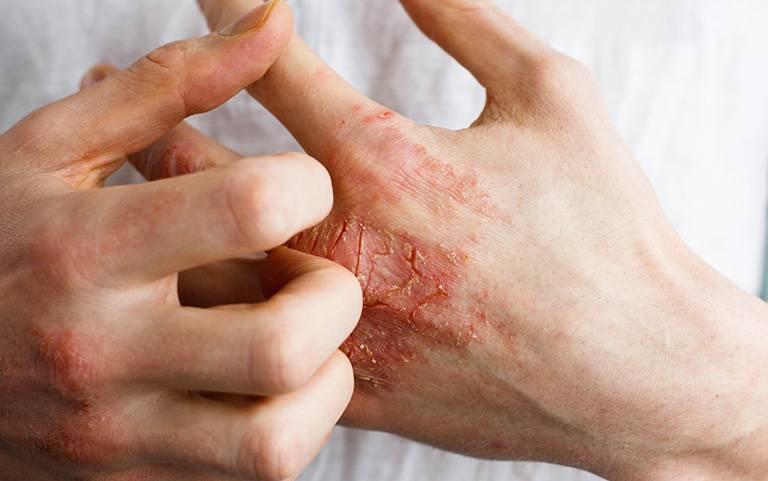 Tay là vị trí thường hay bị viêm da tiếp xúc dị ứng