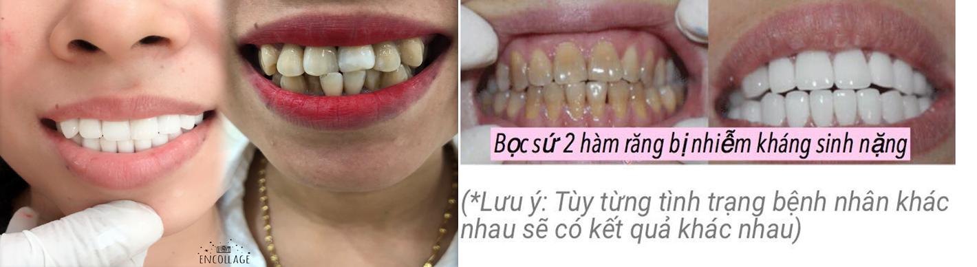 thẩm mỹ răng sứ cercon HT giá rẻ tại nha khoa catarina