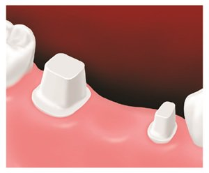 Diagram of replacing tooth with conventional three-unit bridge