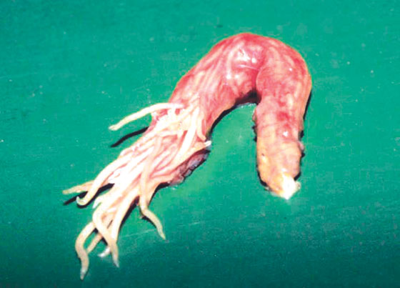 Intestines with ascarid obstruction