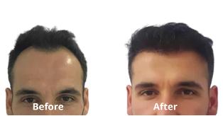 quick hair transplant