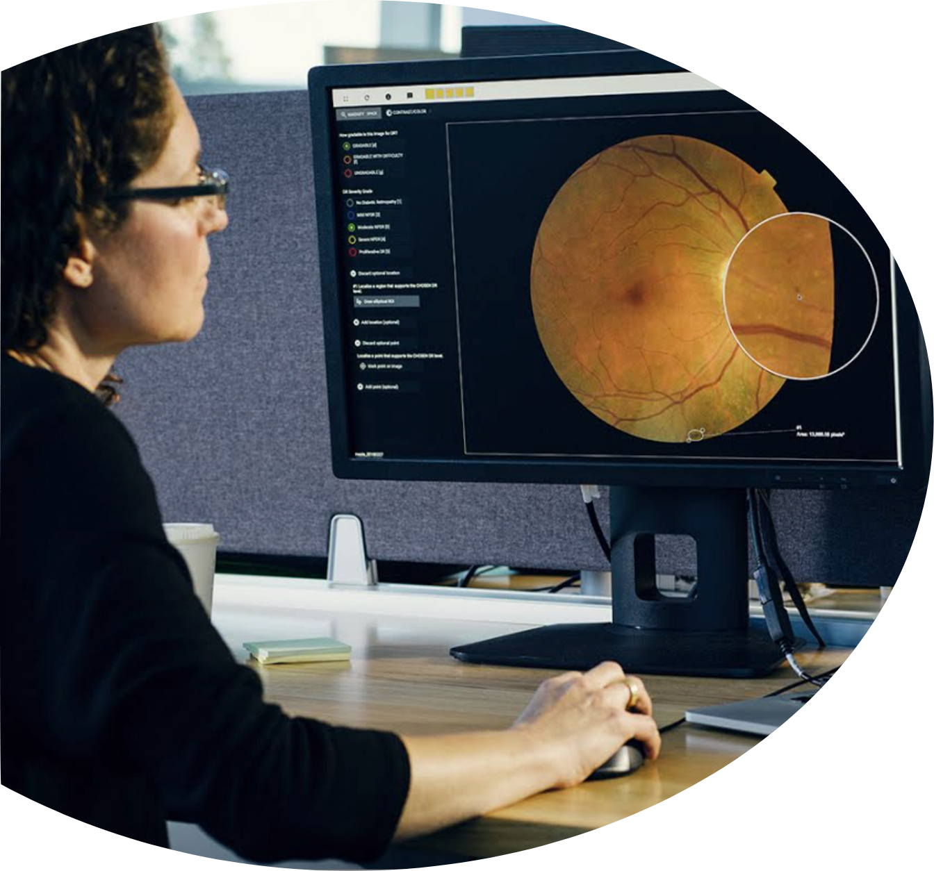 Person looking at eye scan on screen