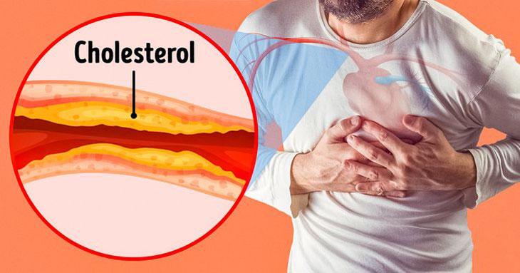 Ngâm chân nước nóng không tốt với những người bị tắc nghẽn động mạch