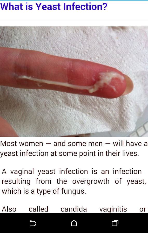 yeast infection - android apps on google play, Human Body