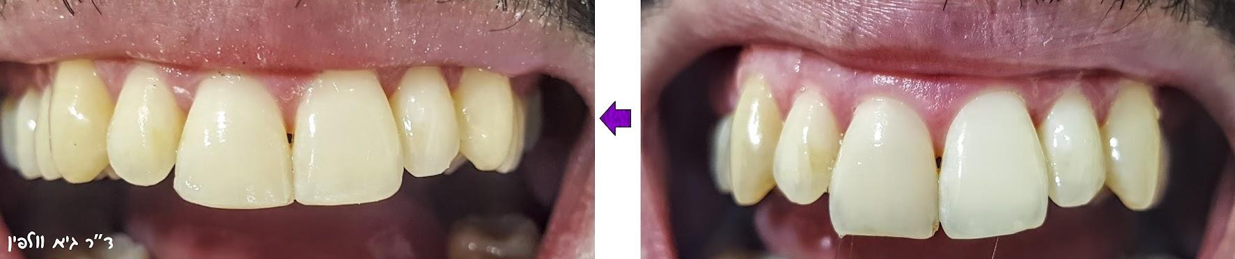 שיני ארנבת, שיניים בולטות, ניבים ערפד - אסתטיק דנטלית, ד''ר גיא וולפין