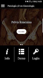 Patología 3D Ginecología - náhled