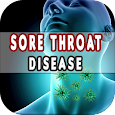 Sore Throat: Causes, Diagnosis, and Management icon