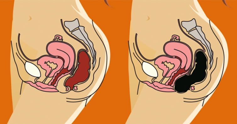 How To Remove Pounds Of Toxic Waste From Your Colon