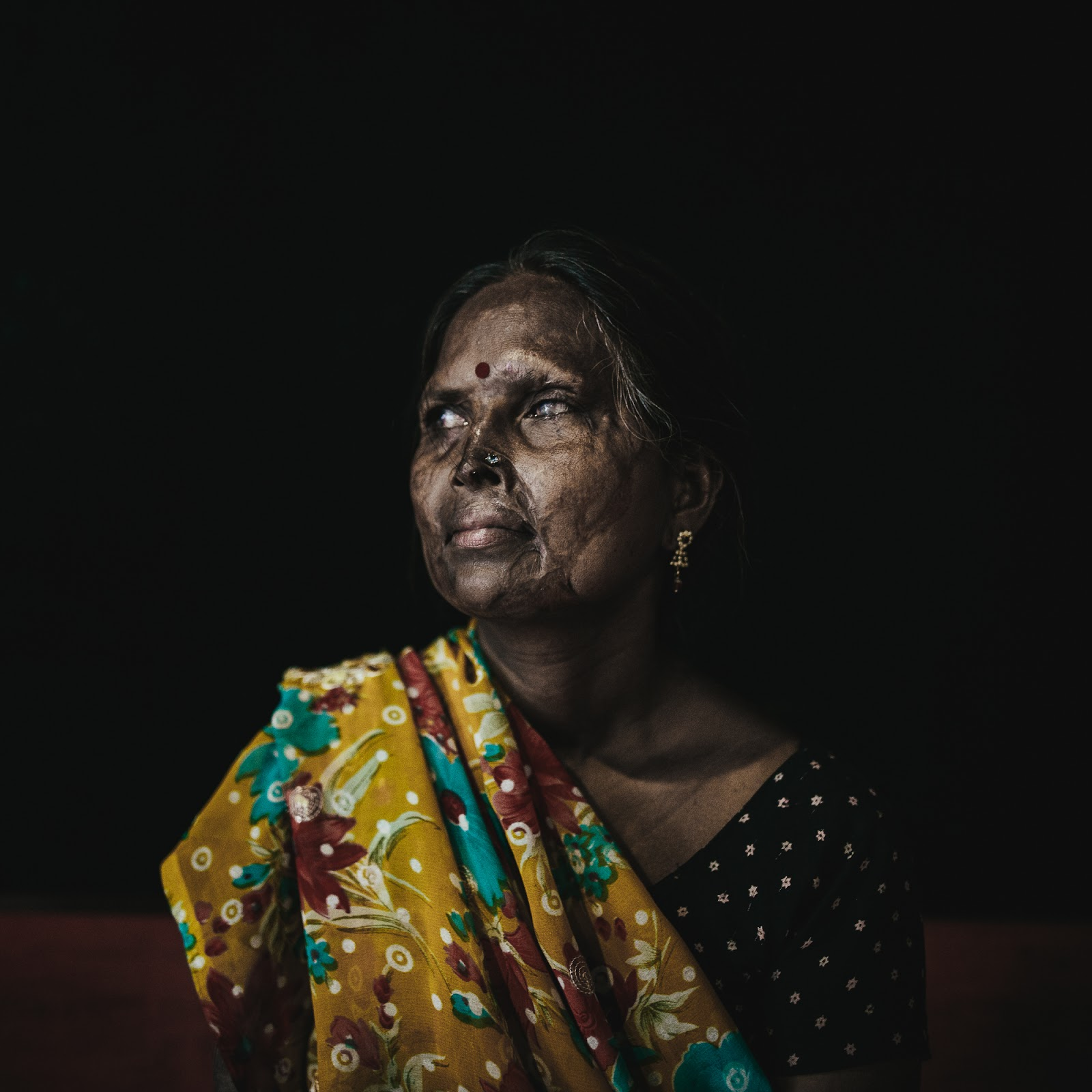 The Stories Of India's Acid Attack Survivors