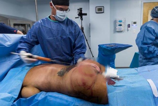 Popo ameliyatı