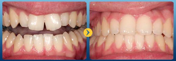 Ưu nhược điểm của niềng răng mặt trong có thể bạn chưa biết 1