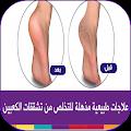 وصفات علاج تشقق القدمين طبيعيا download
