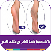 وصفات علاج تشقق القدمين طبيعيا Mod