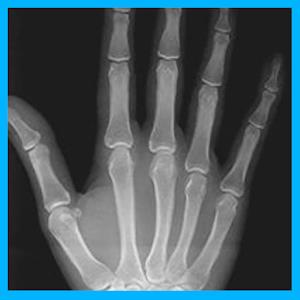 Radiografia real Gratis