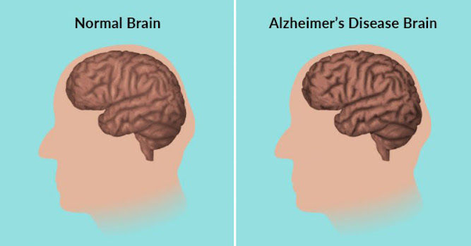 8-Step Alzheimer's Prevention Plan to Stop Memory Loss Before It Starts