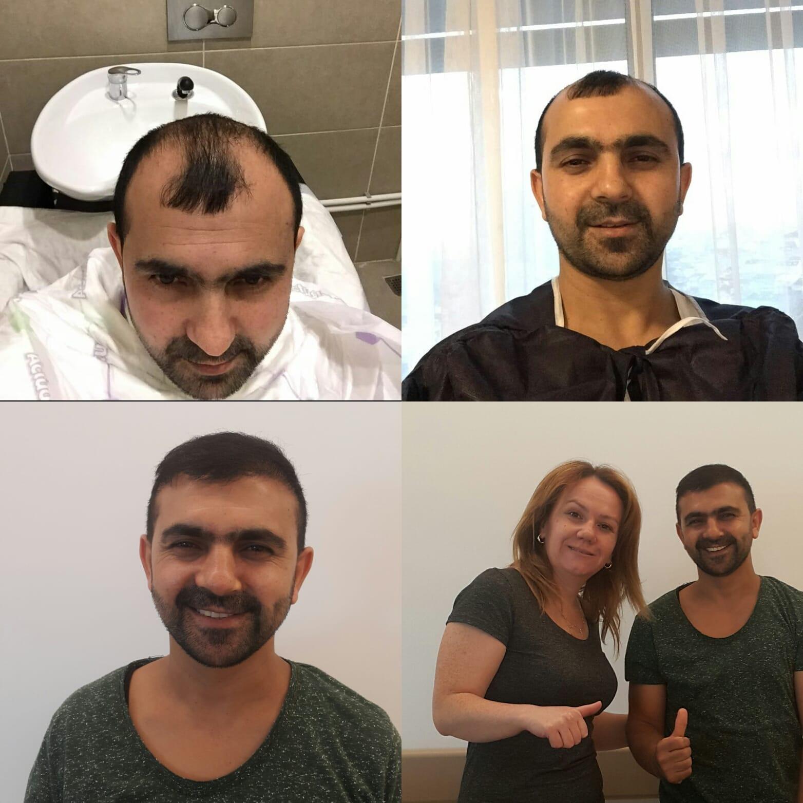 Die Fortschrittlichste Methode Der Haartransplantation Für Frauen - F. U. E. 3 - Bank Of Hair