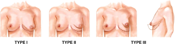 Tuberlar Breast