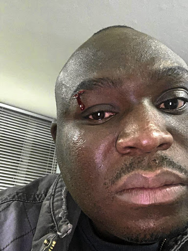 Ron Rambebu was assaulted and called by a k-word by unknown men for allegedly wearing an EFF-branded cap