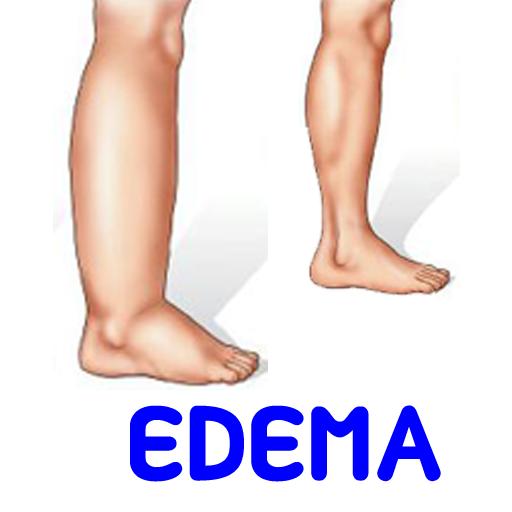 水肿周边小腿肿胀症状治疗原因迹象 醫療 App LOGO-硬是要APP