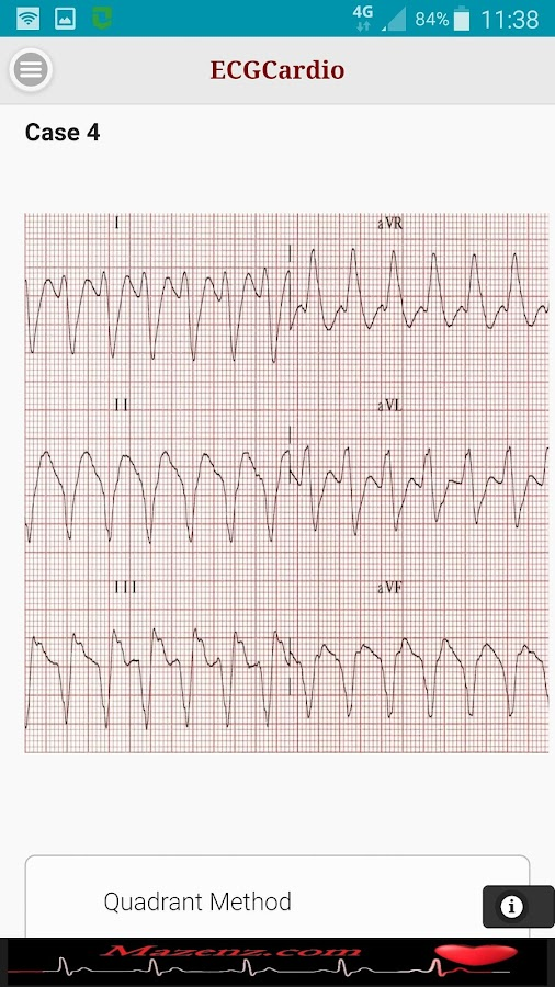 ECGCardio- screenshot