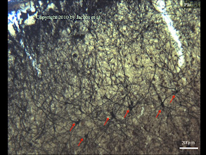 Photo: Figure 5: This is a low magnification view of the occipital cortex in the elephant. Very clearly indicated by the red arrows are an abundance of relatively deep, large neurons (e.g., flattened pyramidal neurons) with very widely bifurcating apical dendrites. These were common in the elephant and suggest a great deal of lateral integration of information, perhaps because of the relatively low density of cortical neurons.