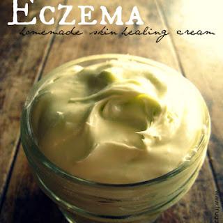 Healing Eczema Cream