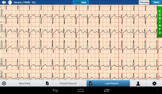 Cardiotrack Oxygen - náhled
