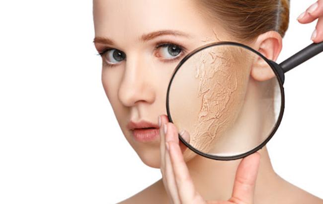 Sự bài tiết dầu nhờn quá nhiều sẽ dẫn đến tình trạng mất nước làm bong tróc da