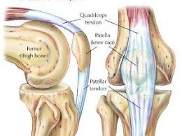 Penyembuhan Osteoarthritis