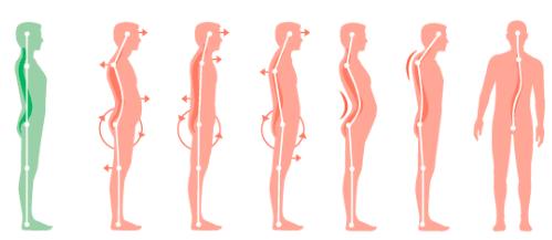 Afbeeldingsresultaat voor postural types