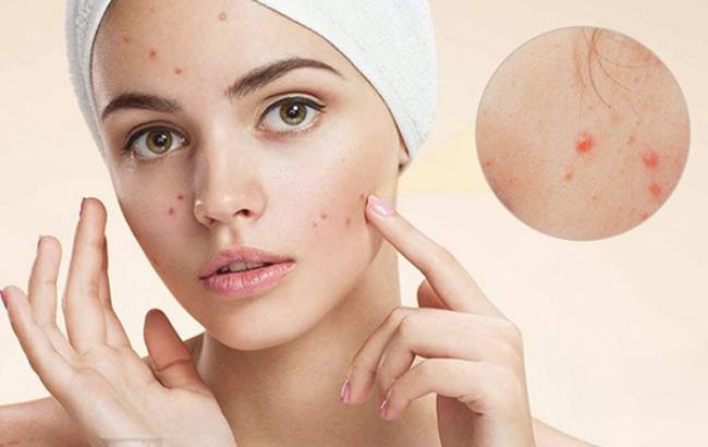 """Lớp dầu nhờn tạo """"điều kiện trú ngụ"""" cho bụi bẩn và vi khuẩn sinh ra mụn trên da"""