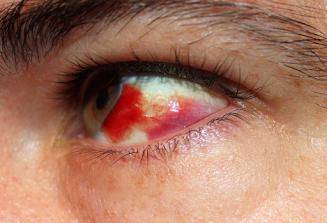 Penyebab Mata Merah Seperti Darah Menggumpal