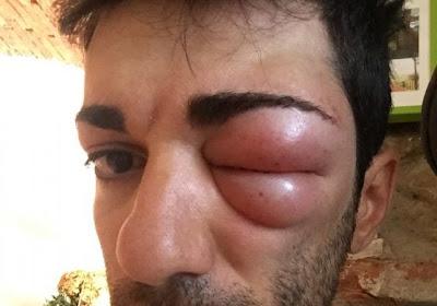Sander Armée is niet alleen, Italiaanse renner mist de Route d'Occitanie door deze pijnlijke insectenbeet