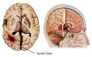 Cara Mengobati Penyumbatan Pembuluh Darah di Kepala
