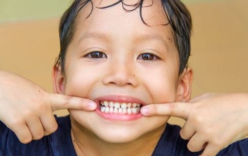 dentist-dental-sealant-treatment