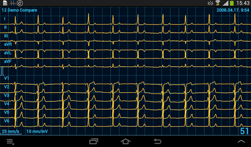 Cardiax Mobile ECG 1.36 screenshots 10