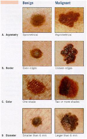 graph-of-skin-cancer.jpg
