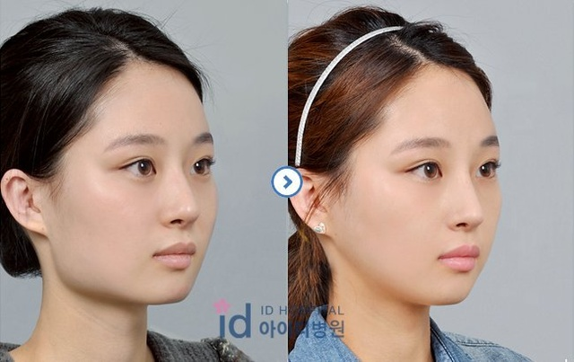 how to get rid of chubby cheeks plastic surgery
