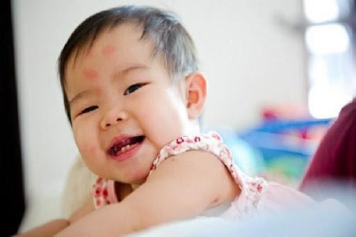 Bác sĩ Nhi hướng dẫn cha mẹ cách trị vết muỗi đốt đơn giản cho trẻ em  ảnh 1