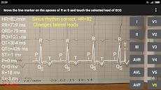 ECG Reader 2のおすすめ画像5